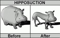 hipposuction before after